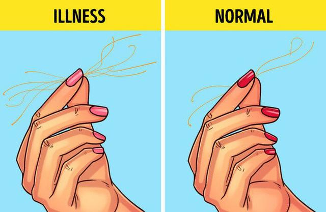 Có thể tự làm tại nhà những bài kiểm tra sức khỏe đơn giản 3 - Deli Beans